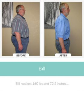 chirothin before and after photos bill