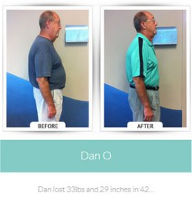 chirothin before and after photos dan