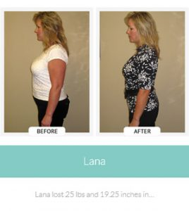 chirothin before and after photos lana